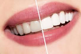 teeth whitening nanaimo dental 2014