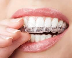 teeth whitening with custom trays nanaimo 2014