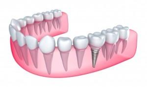 dental_implant_full_jaw