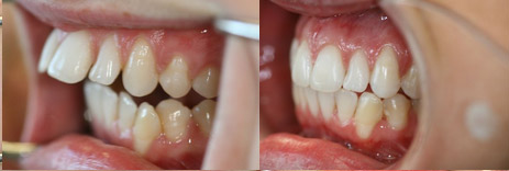 Love before and after adult braces