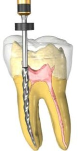 root canal nanaimo dentists
