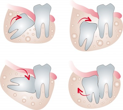 Wisdom Tooth Extraction Downtown Nanaimo Dentists Downtown Nanaimo Dental Group