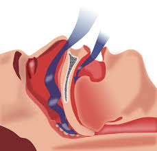 sleep apnea diagram nanaimo sleep dental