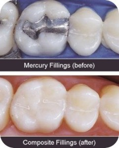 amalgam versus mercury-free composite fillings