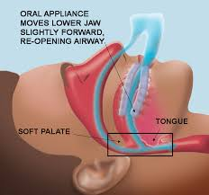 dental sleep appliance for sleep apnea