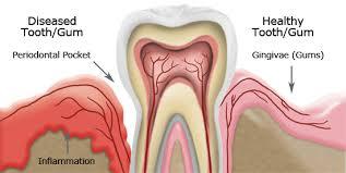 gum health vs gum disease